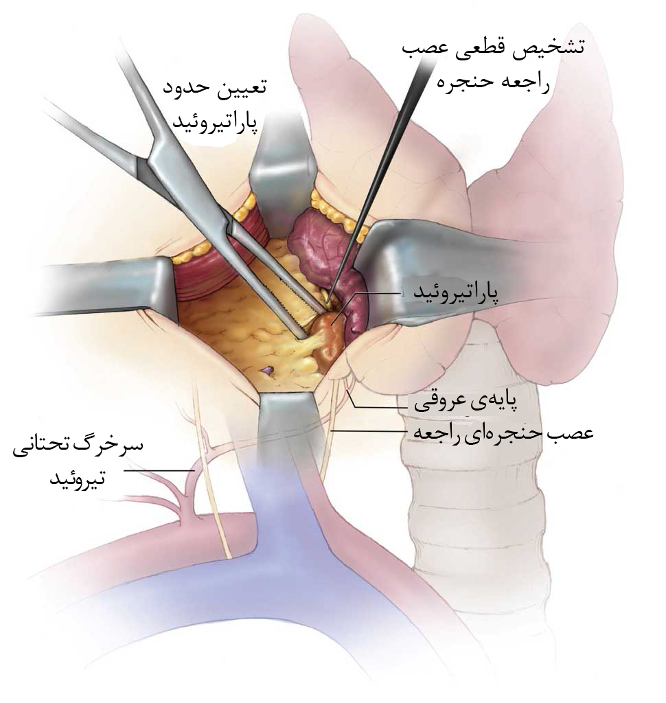 Parathyroidectomy: Identification of the Recurrent Laryngeal Ner